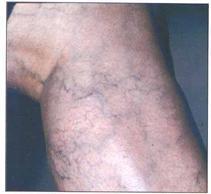 doorbloeding benen